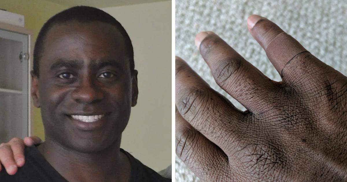 Homem de 45 anos compartilha sua reação emocionante ao colocar um curativo do mesmo tom da sua pele pela primeira vez