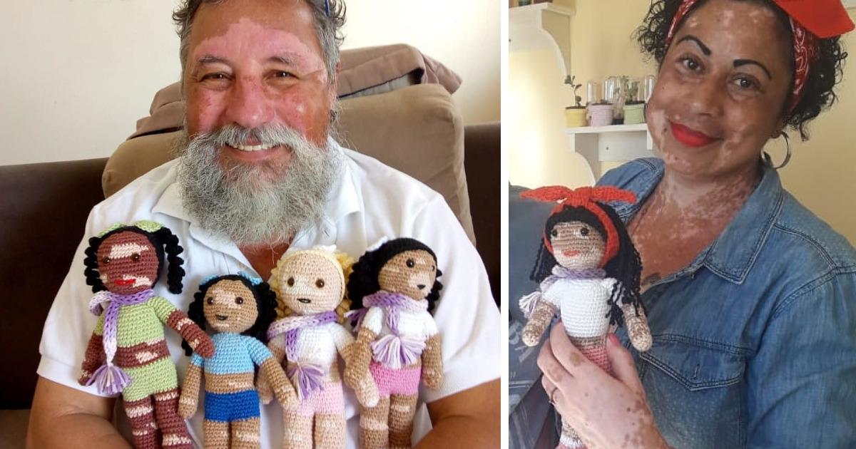 Avô brasileiro com vitiligo faz bonecas de crochê para que crianças com vitiligo se sintam melhor