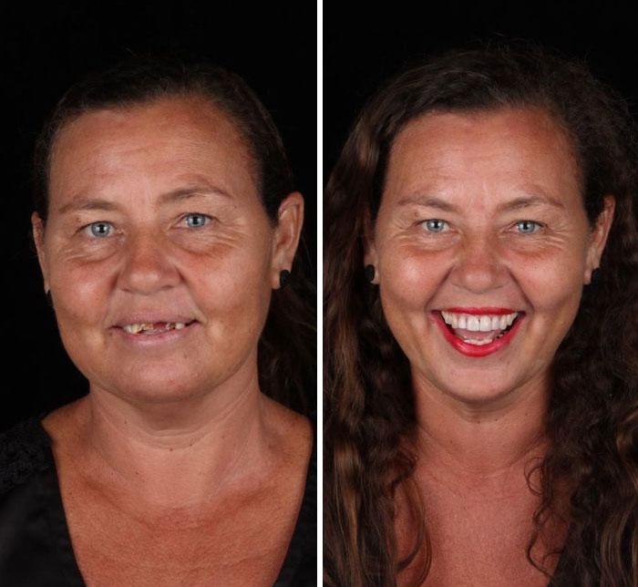 Dentista brasileiro viaja para tratar os dentes de pessoas de graça, e aqui estão 30 transformações