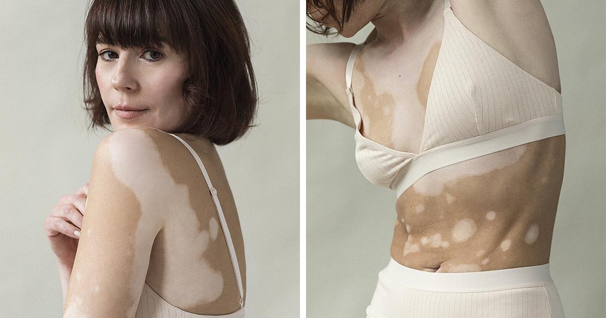 Fotógrafa com vitiligo faz uma série com outras mulheres que sofrem com essa condição da pele
