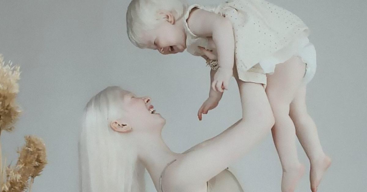 Estas Irmãs Albinas Nascidas Com 12 Anos De Diferença Estão Surpreendendo O Mundo Com Sua Beleza Extraordinária