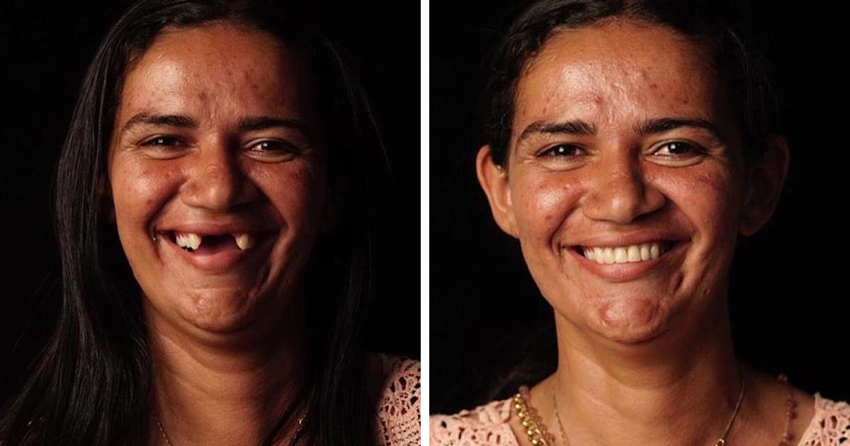 34 Antes E Depois De Pessoas Que Tiveram Seus Dentes Consertados Por Este Dentista Que Viaja Oferecendo Seus Serviços Para Quem Precisa